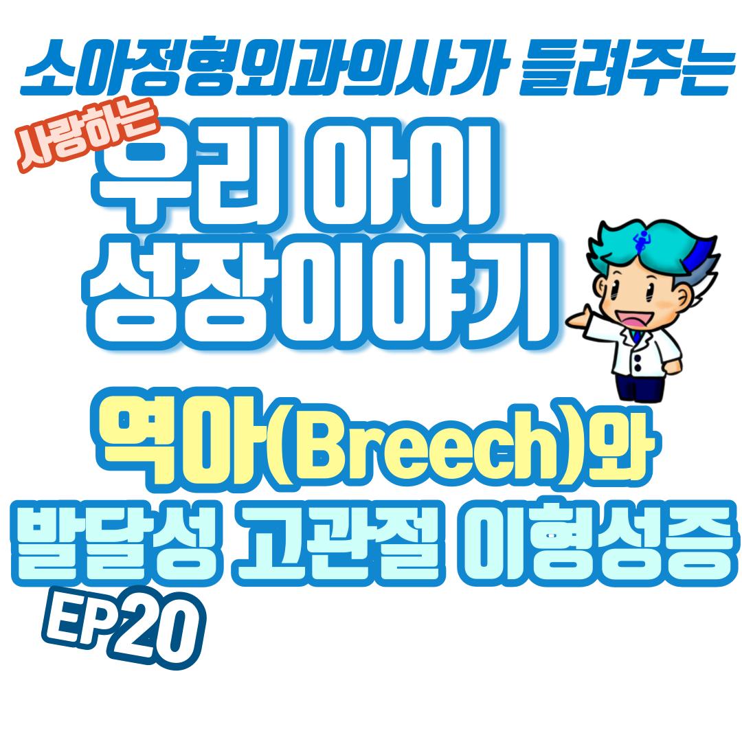 20 발달성 고관절 이형성증과 역아 ( DDH vs Breech)